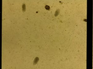 Equine strongyle eggs in a McMasters counting chamber viewed with the ioLight field microscope